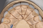 Fig 8. This occlusal view of master cast shows symmetrical balance from Nos. 5 through 12 on indirect porcelain restorations.