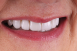 Fig 10. In this right lateral final smile photograph, the patient's new smile exhibits the natural esthetic appeal that she desired.