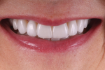 Fig 9. In this anterior final smile photograph, the patient's new smile exhibits the natural esthetic appeal that she desired.