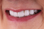 Fig 11. In this left lateral final smile photograph, the patient's new smile exhibits the natural esthetic appeal that she desired.