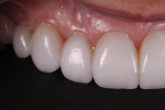 Fig 12. The lateral photographs show healthy gingival tissues, surface texture, and translucency.