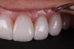 Fig 13. The lateral photographs show healthy gingival tissues, surface texture, and translucency.