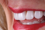 Fig 14. This lateral smile view shows the natural esthetic blend in harmony with the lips.