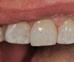 Final restoration utilizing OMNICHROMA composite restorative. Note the natural blending and color match to the adjacent tooth structure (A superfine placement of Tokuyama Estelite COLOR [shade: WHITE] was used to add characterization to match the slight hypocalcification of the adjacent teeth.).