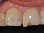 Preoperative photo of 20-year-old Class IV composite, revealing material shade mismatch with moderate wear and recurrent decay on tooth No. 9.
