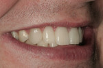 Figure 24  A right side view of the patient's postoperative smile.