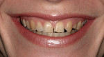 Figure 1  A view of the patient's smile. There is no disease, just esthetic problems such as color alterations, shape, and position disorders.