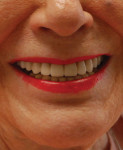 Final smile photograph showing a satisfied patient with newfound esthetics, improved comfort, and elimination of infection.