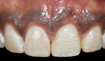 Fig 16. Six months post healing. Note the healthy tissue tone and preservation of the interdental papillae height.