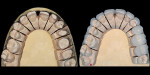 Figure 14  The preparations were conservative and kept in enamel where possible. Notice the slice preparations in the diastema and aggressive preparation of the distal of the cuspids to make proportions more like laterals.