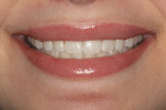 Fig 12. At 1-week postoperative, the patient had the smile that both she and the clinician were hoping for, demonstrating excellent color match and beautiful esthetics.