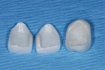 Figure 15  Zirconia veneers were made and character porcelain added only to the outer surface. The ZrO2 inner surface is un-etchable.