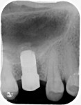 Fig 7. Periapical radiograph demonstrated the radiopaque appearance of the fully seated healing abutment and the graft material apical to the implant.