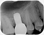 Fig 12. Radiographic verification at the final occlusal check appointment at 8 weeks post-restoration.