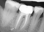 Figure 2  Healing at the apex after re-treatment on tooth No. 30.