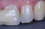 Initial preferred shade demonstrated by tooth No. 10 with custom A3 tab.