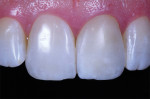 Postwhitening reevaluation showing cut back needed for tooth No. 9.