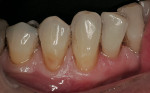 Figure 5  Exposed dentin from an abfraction lesion on teeth Nos. 27 and 28.