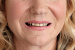 Figure 1  Before treatment with Snap-On Smile.