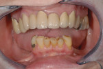 Figure 1  Pretreatment condition of patient showing loss of all mandibular posterior teeth.