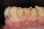Figure 5  Retained mandibular anterior teeth appear heavily worn and broken down.