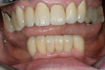 Figure 12  Definitive lithium-disilicate ceramic veneers (IPS eMax) bonded with light-cured resin cement.
