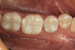 Figure 2  Postoperative photograph of three Class I composite resin restorations using a microhybrid composite.