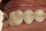 Figure 4  The final results are a clinically excellent Class II restoration.
