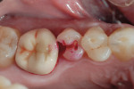 Figure 2  The tooth was prepared, after which a caries-detecting agent was applied.