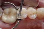 Figure 11  The final Venus Diamond composite layer was placed on the occlusal surface.