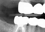 Postoperative radiographs showing the marginal integrity and accurate fit of the posterior zirconia restorations.
