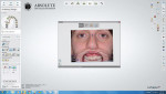 Smile imported into the design software.
