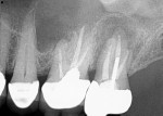 Fig 5. Case 2. Preoperative periapical radiograph showed previous root canal treatment on teeth Nos. 14 and 15