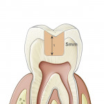 Figure 3  The SonicFill™ system allows a placed to polished restoration in less than 3 minutes in cavities up to 5 mm.