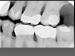 Figure 3  A radiograph shows the precise fit of both crowns, as well as the more typical fit of a traditionally fabricated crown on tooth No. 19.