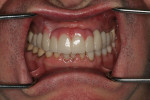 Fig 7. Indirect provisionals were added to the natural teeth and implants based on the diagnostic wax-up.