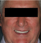 Fig 1. The 64-year-old patient is unhappy with his dental esthetics, especially the bright white teeth, as he feels they are no longer age-appropriate.