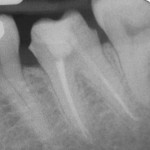 Figure 10  Radiographs before and after post placement. No additional dentin was removed after obturation for preparation of the post space. The endodontist created the post space prior to the patient returning for the restoration.
