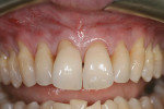 Figure 1  Preoperative view of teeth Nos. 5 through 12 shows mild to severe gingival recession.