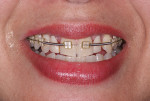 Fig 7. Orthodontic treatment following implant placement.