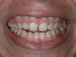 Fig 2. Close-up view of patient's smile.