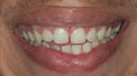 Fig 10. Clinical aspect after gingival plastic surgery and tooth bleaching.
