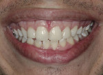 Fig 21. Close-up view of the patient's smile at 1-year post-treatment.