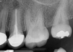 Immediately visible radiographic differences between traditional and modern surgical approaches.