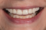 Close-up full smile photograph with teeth apart.
