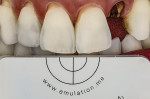 A successful single-tooth restoration, completed with Julian Cardona, CDT.