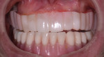 "Fig 6. Patient presented with ill-fitting acrylic ""snap-on"" maxillary provisional and full mandibular denture."