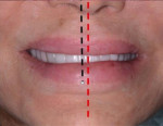 Fig 8. The patient's facial midline, demarcated by the red dotted line, did not coincide with the dental midline, indicated by the black dotted line.