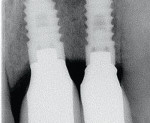 Figure 10  Magnification of a radiograph of two BioHorizons Tapered Internal Implants (42 months after surgical placement and 39 months after restoration) showing crestal stability between two implants, with less than 3 mm of implant-to-implant space