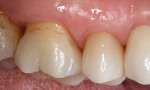 Final restoration at 14-month follow-up appointment, exhibiting excellent adaptation and function.